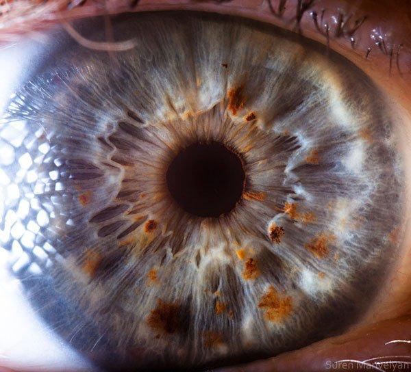 closes olho humano (10)