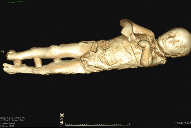 Antigos romanos de Pompéia tinham dentes perfeitos 0