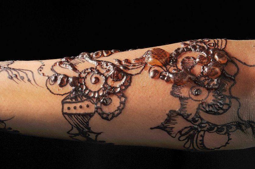 alergia a henna