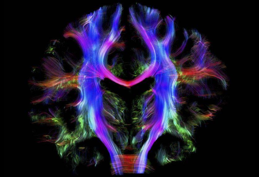 moléculas de água do cérebro