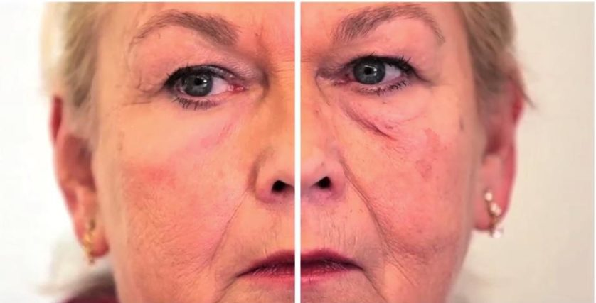 A parte esquerda da imagem mostra o produto aplicado embaixo do olho da voluntária, enquanto a parte direita mostra a pele natural