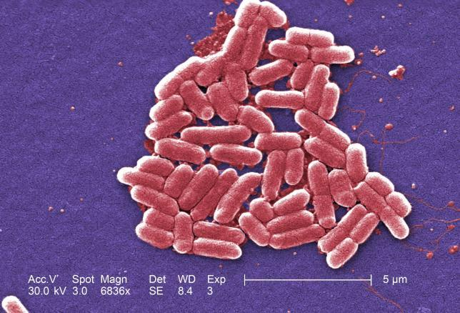O gene mcr-1 foi identificado primeiro na Escherichia coli