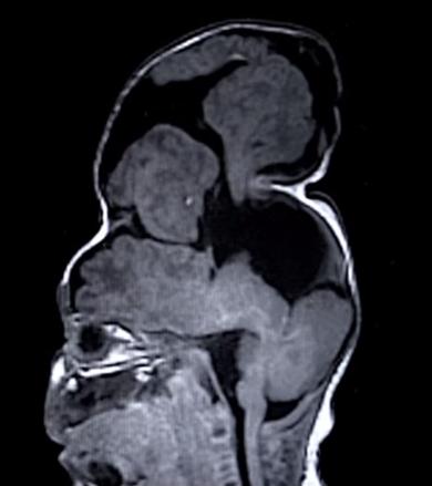 bebe cerebro crescendo para fora cranio2