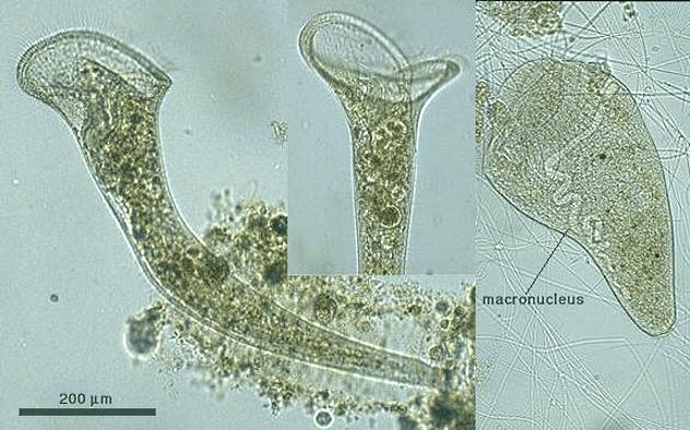 organismos-unicelulares-grandes-1