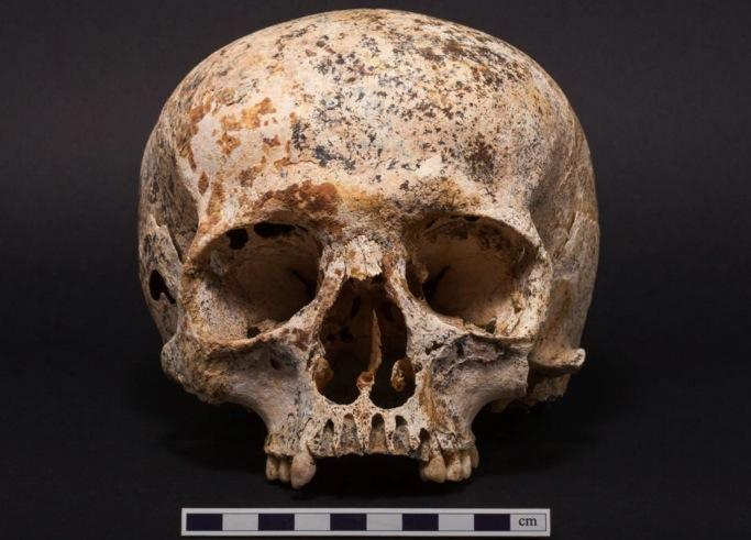 ava cranio idade bronze
