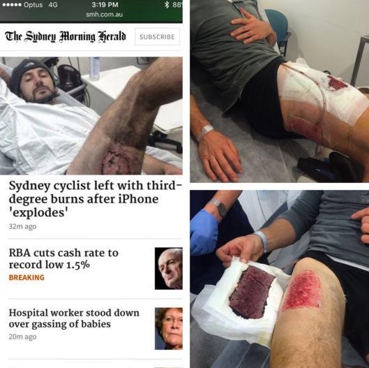 iphone explode em bolso de ciclista 5
