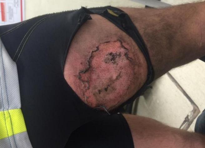 iphone explode no bolso de ciclista 2