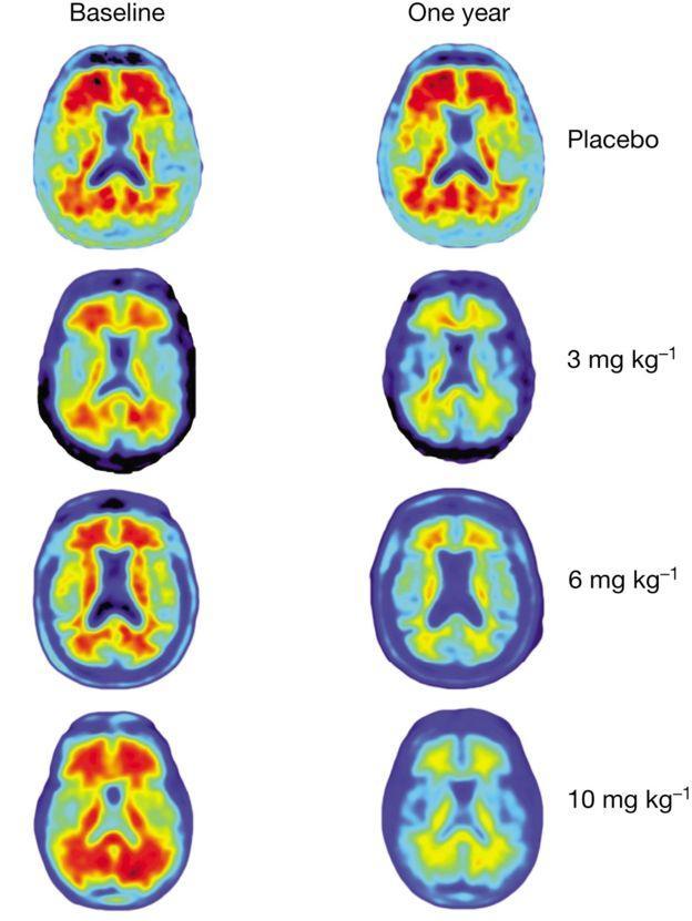Diferenças nos cérebros dos pacientes após tomarem por um ano placebo e diferentes doses da droga