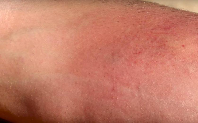 resultado-picada-formiga-veludo