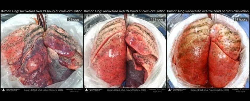 Estágios de recuperação de pulmões humanos ligados a porcos