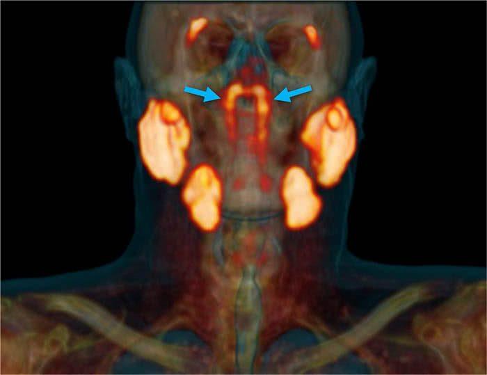 Glândulas salivares no meio da cabeça