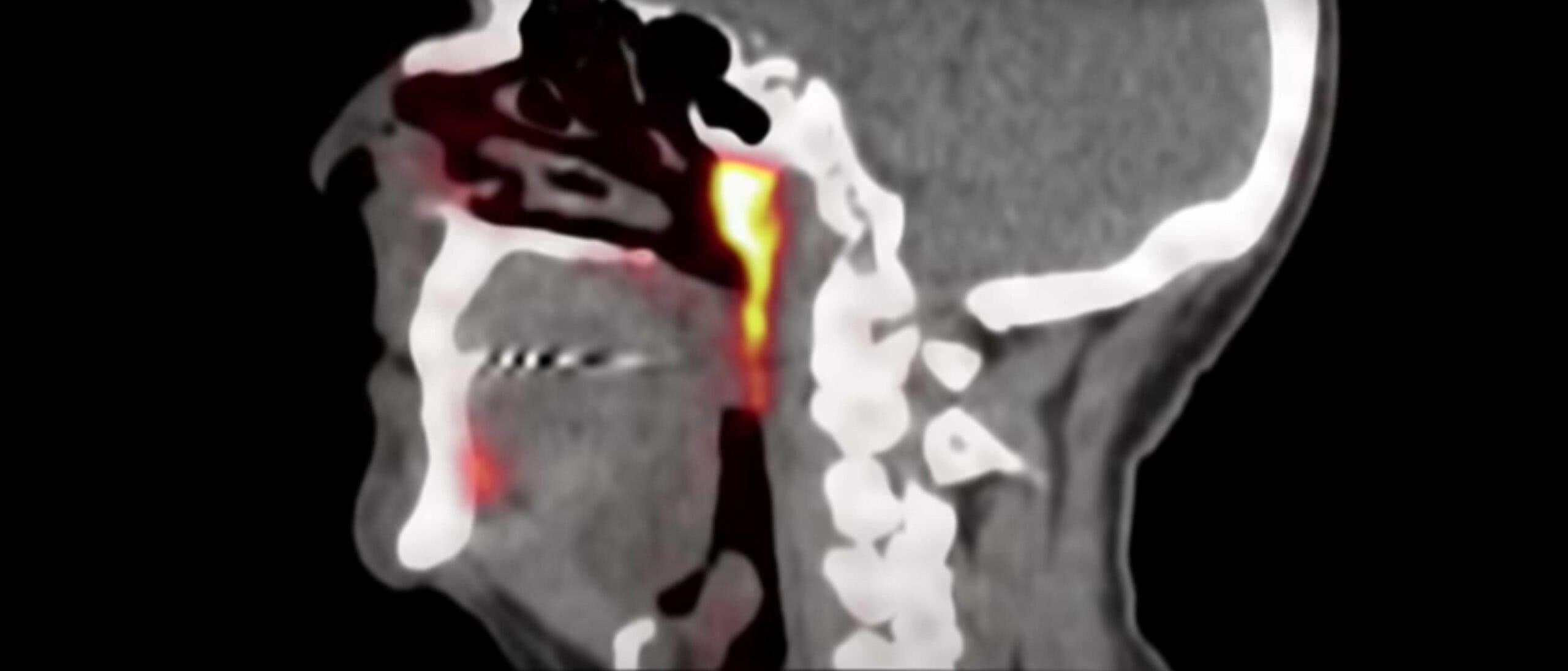 Glândulas salivares tubárias
